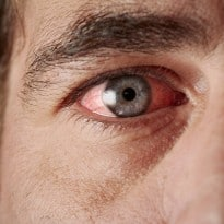 Causes of Conjunctivitis and How to Treat it