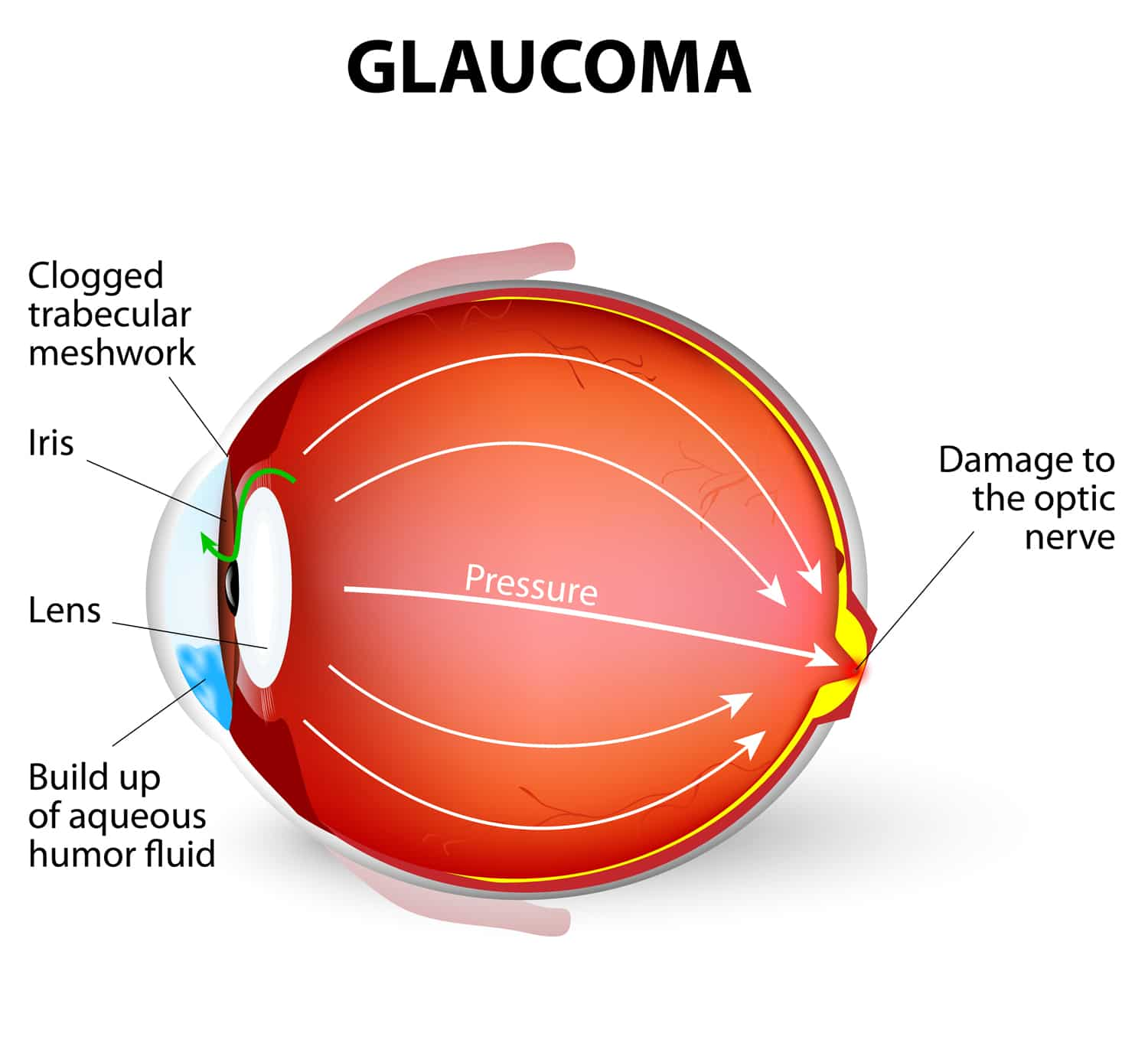 Protect Your Vision Know The Symptoms Of Glaucoma