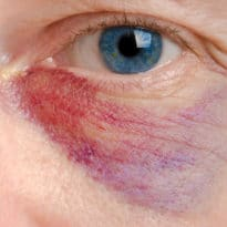 Eye Injuries From Falls Increasing as Population Ages, But Are Often Preventable