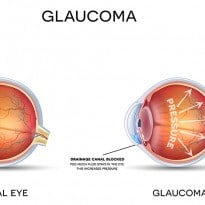 Save Your Vision: Glaucoma Awareness